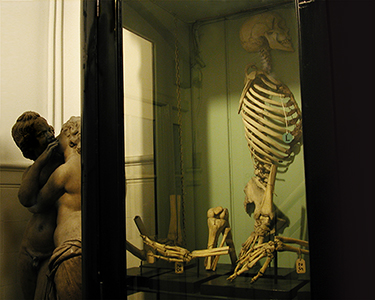 statues kissing beside a case of skeletons